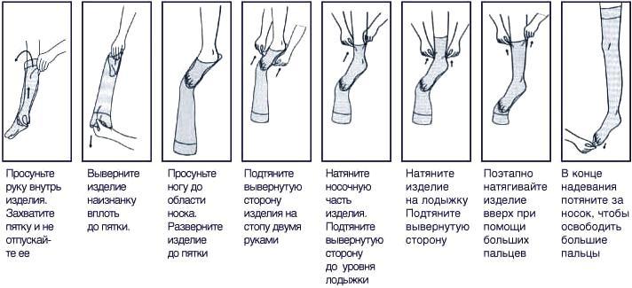 Параметрий варикозное расширение вен