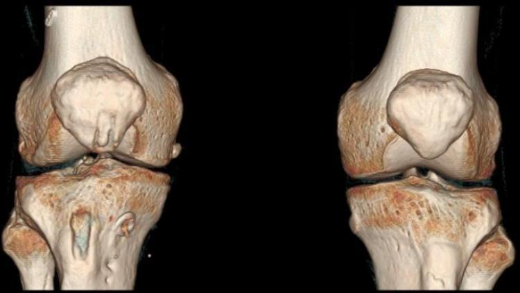 Какой врач лечит артрит и артроз суставов?